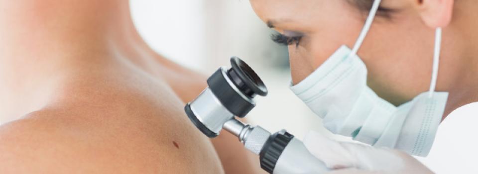 Dermatological Check Up Cancer Grains de Beautés Beauty Spot