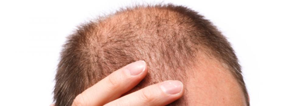 Hair Transplant Greffe Cheveux